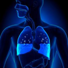 Pulmonary Edema - Water in Lungs