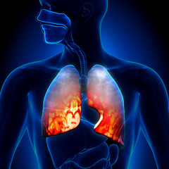 Pneumonia - Lungs Inflammatory Condition