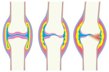関節変形の略図