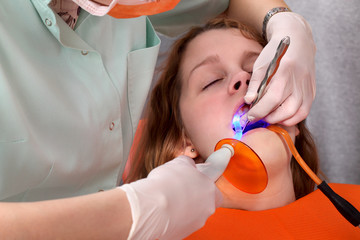 Dentist using dental UV curing light led laser dental procedure