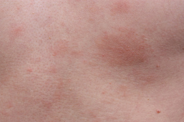 Example dermatological skin allergy