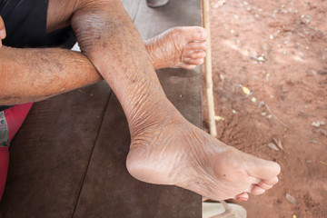 Feet of a wrinkled old man in the northeast of Thailand.