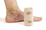 Varicose veins and bandage poster