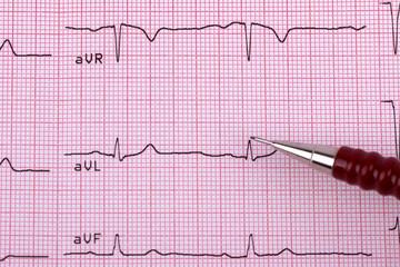 Healthy Heart cardiogram