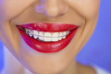 Beautiful smiling girl with retainer for teeth, close-up (on a b