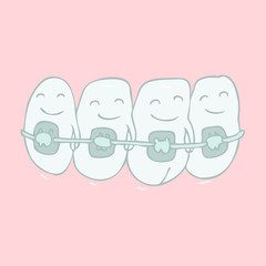 orthodontic treatment (tooth braces) vector illustration
