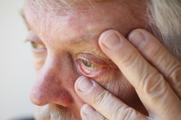 Tired senior man shows lower eyelid