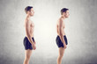 Man with impaired posture position defect scoliosis and ideal - 66813369