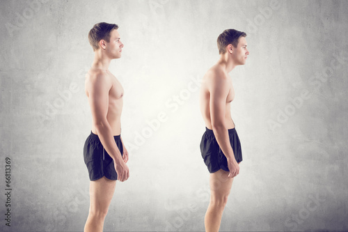 Leinwandbild Motiv Man with impaired posture position defect scoliosis and ideal