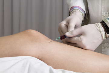 Closeup of doctor injecting platelet rich plasma to knee