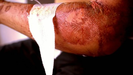 Close up of cleaning wounds and removing the bandage used.