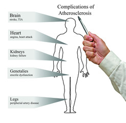 Complications of Atherosclerosis