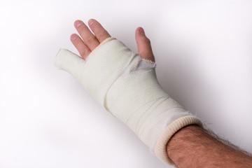 Little finger in cast