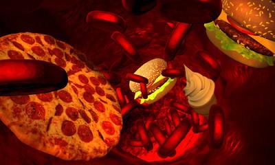 Cholesterol blocked artery, medical concept