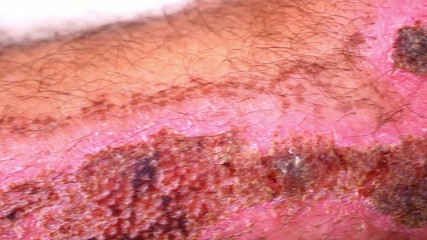 Close up of scars and wounds on hairy male leg. Macro video