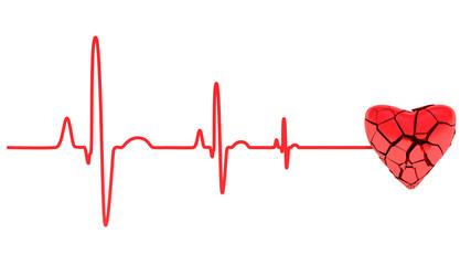 cardiac arrest, ECG