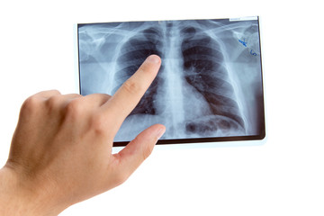 Male hand pointing on lung radiography