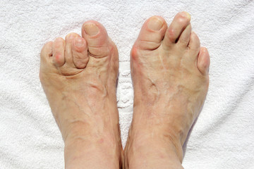 Deformed feet due to medical error on a white towel