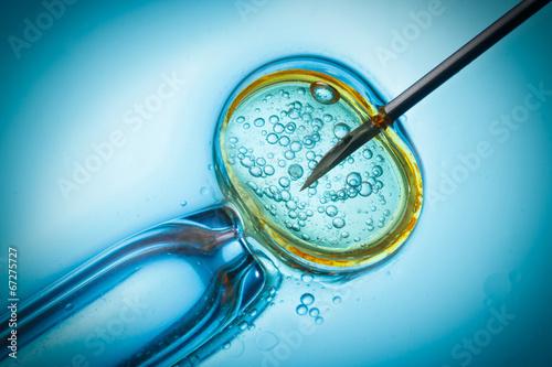 Leinwandbild Motiv In vitro fertilisation, IVF macro concept