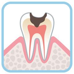 歯の断面図 虫歯