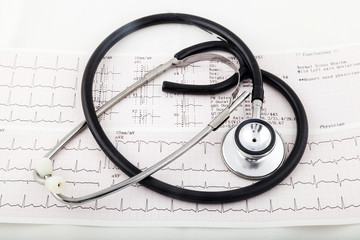 Stethoscope on an electrocardiogram (ECG) chart