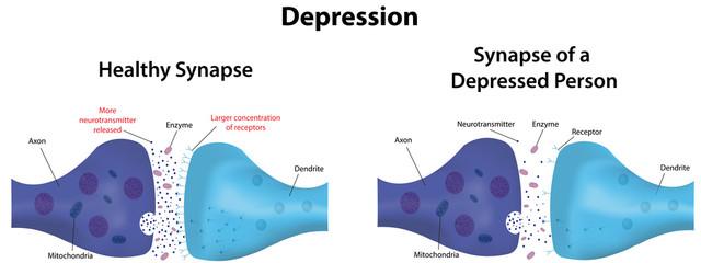 Depression Labeled Diagram