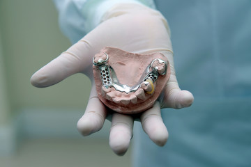 Denture in dentist hand.