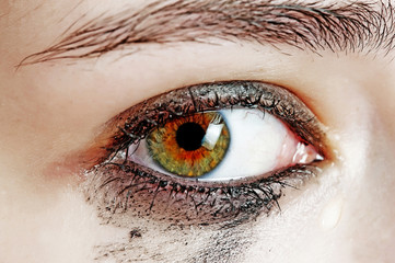 watery eye - sensitive eye of young girl - cying eye