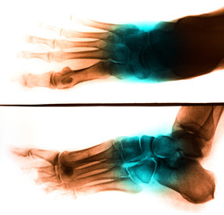 X-Ray scan human for foot