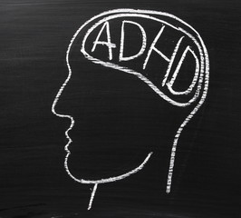ADHD for Attention Deficit Hyperactivity Disorder