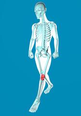Uomo che cammina visto ai raggi x con dolore alle ginocchia