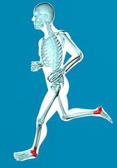 Uomo che corre visto ai raggi x con dolore caviglia e tallone