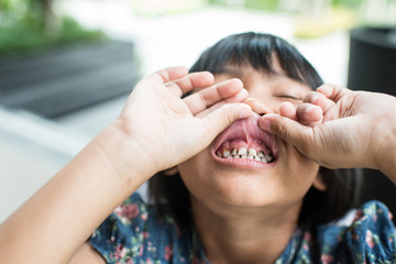 Asian girl showing her teeth.