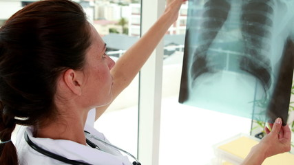 Pretty nurse holding up xray to window