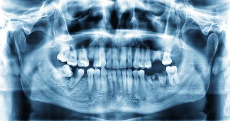 Panoramic dental x-ray image of teeth.