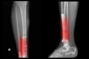 x-ray image of fracture leg (tibia )with implant