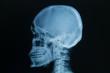 skull x-rays image
