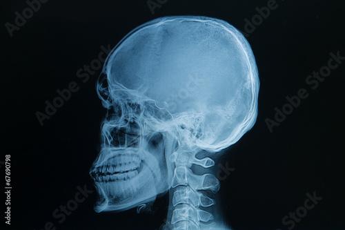 skull x-rays image - 67690798