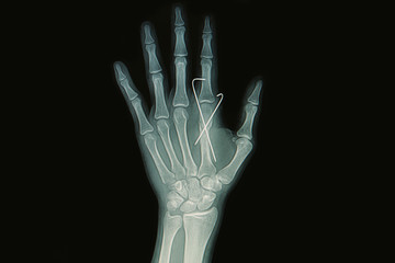 Film x-ray of hand fracture