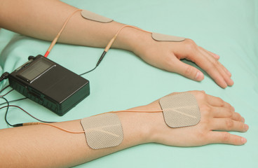 Electrodes  device on shoulder, transcutaneous interferential el