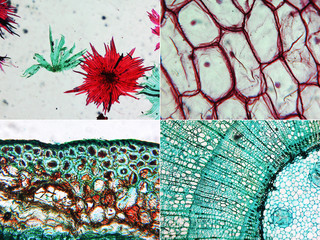 Apple, Onion and Pine Wood micrograph