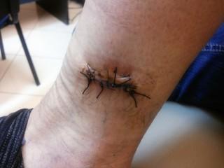 Punti di sutura