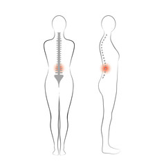 Vector woman body shape. Vertebrae pain.