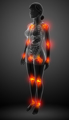 Female body all joint pain