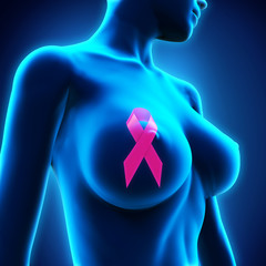 Breast Cancer Ribbon Symbol