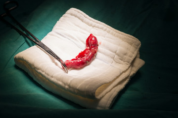 Appendix specimen from appendectomy