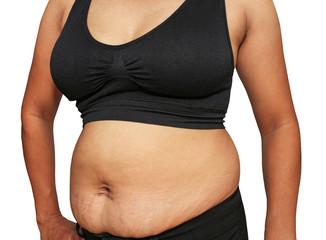 fat woman