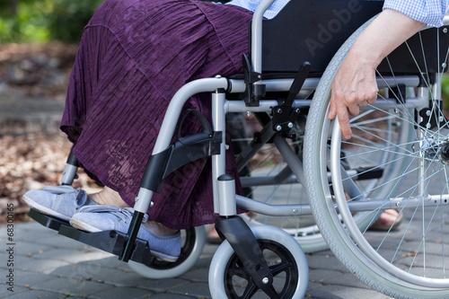 Leinwanddruck Bild Close-up of legs of a disabled woman