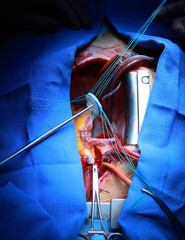 Valve implantation in the human heart