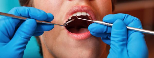 Examination by dentist